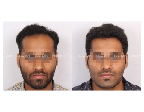 23Hair-Transplant-male-before-after-4000-hair-grafts-26