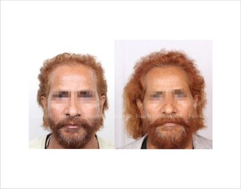 24Hair-Loss-male-before-and-after-result-23
