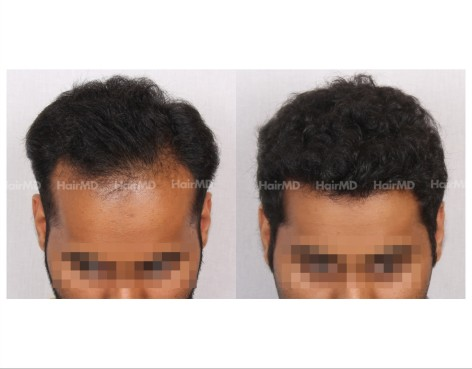 24Hair-Transplant-male-before-after-4000-hair-grafts-27