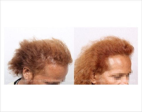 25Hair-Loss-male-before-and-after-result-24
