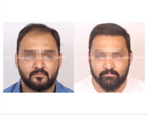 25Hair-Transplant-male-before-after-6000-hair-grafts-44
