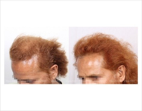 26Hair-Loss-male-before-and-after-result-25