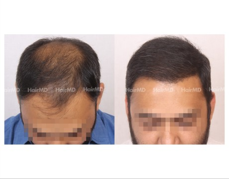 26Hair-Transplant-male-before-after-6000-hair-grafts-45