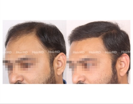 27Hair-Transplant-male-before-after-6000-hair-grafts-46