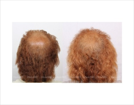 28Hair-Loss-male-before-and-after-result-27