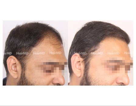 28Hair-Transplant-male-before-after-6000-hair-grafts-47