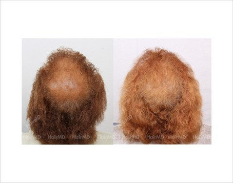 29Hair-Loss-male-before-and-after-result-28
