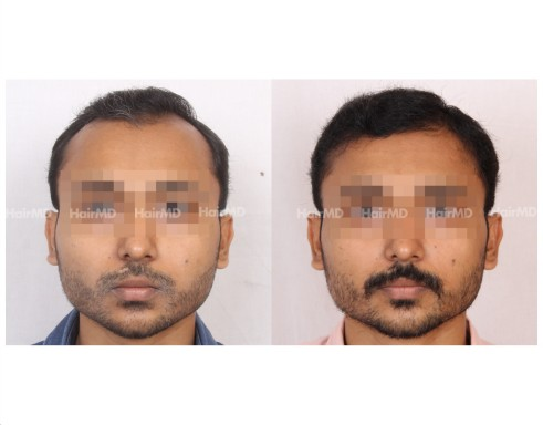 29Hair-Transplant-male-before-after-5000-hair-grafts-20-1