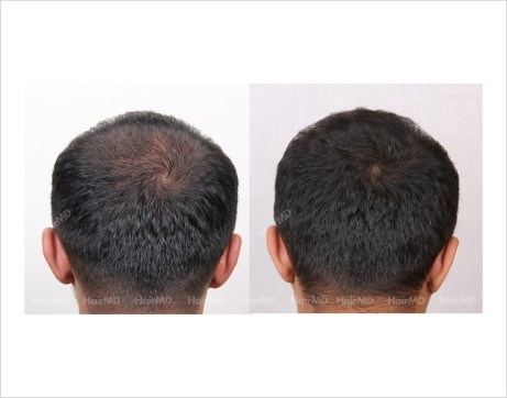 2Hair-Loss-male-before-and-after-result-13