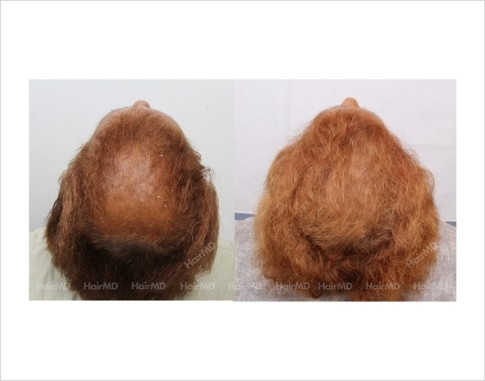 30Hair-Loss-male-before-and-after-result-29