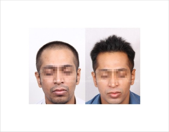 31Hair-Loss-male-before-and-after-result-30