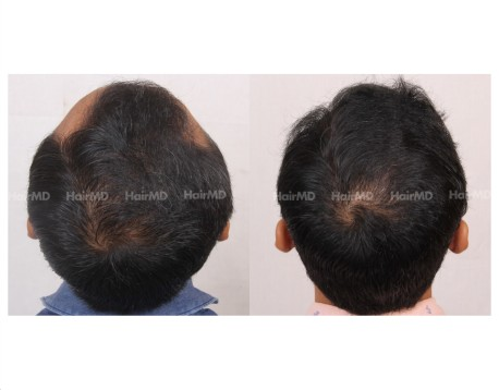 31Hair-Transplant-male-before-after-5000-hair-grafts-22