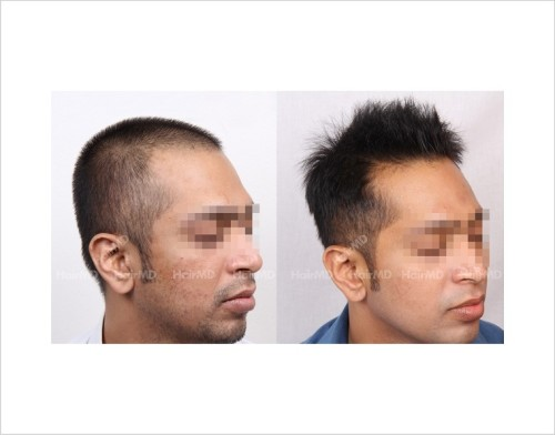 32Hair-Loss-male-before-and-after-result-31