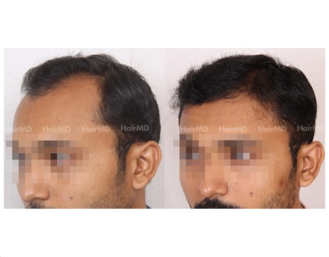 32Hair-Transplant-male-before-after-5000-hair-grafts-23