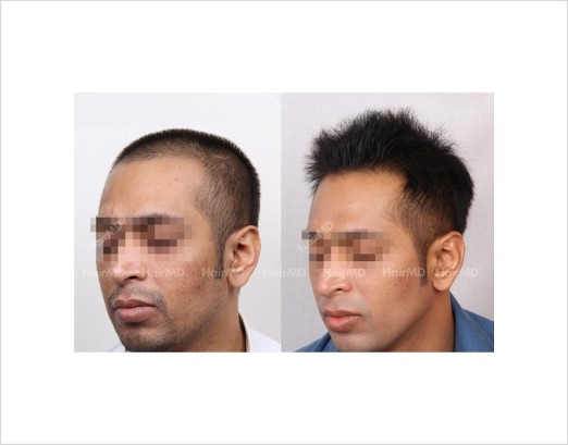 33Hair-Loss-male-before-and-after-result-32