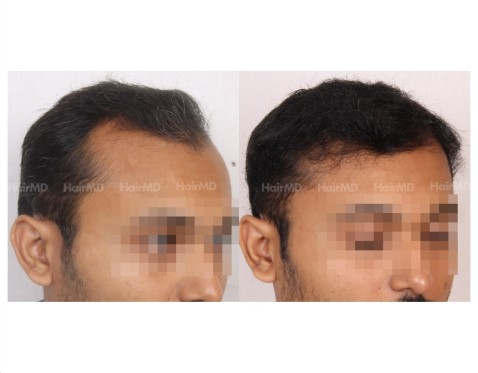 33Hair-Transplant-male-before-after-5000-hair-grafts-24