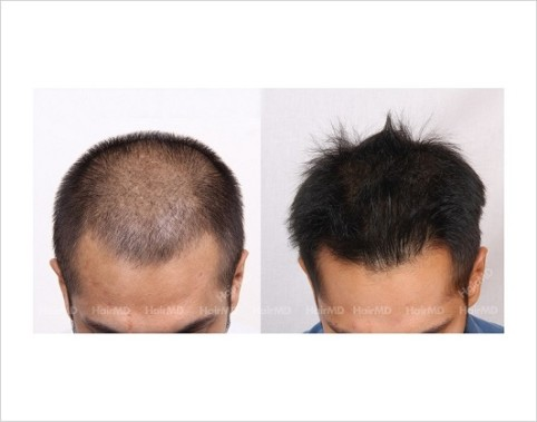 34Hair-Loss-male-before-and-after-result-33