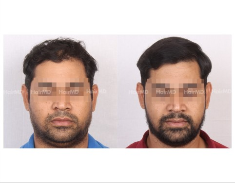 34Hair-Transplant-male-before-after-4000-hair-grafts-23