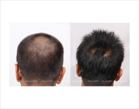 35Hair-Loss-male-before-and-after-result-34