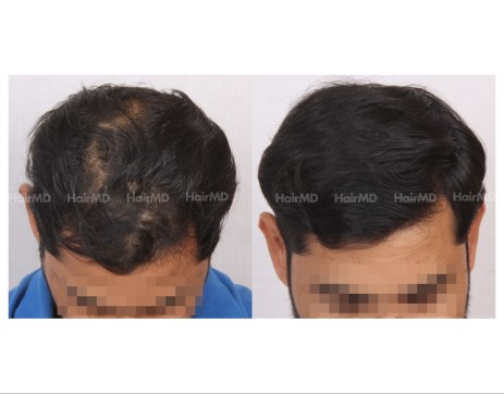 35Hair-Transplant-male-before-after-4000-hair-grafts-24