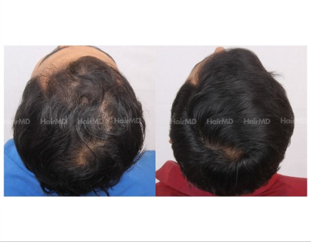 36Hair-Transplant-male-before-after-4000-hair-grafts-25