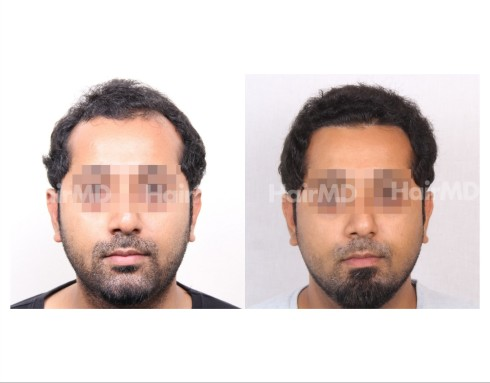 37Hair-Transplant-male-before-after-3000-hair-grafts-20