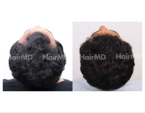 39Hair-Transplant-male-before-after-3000-hair-grafts-22