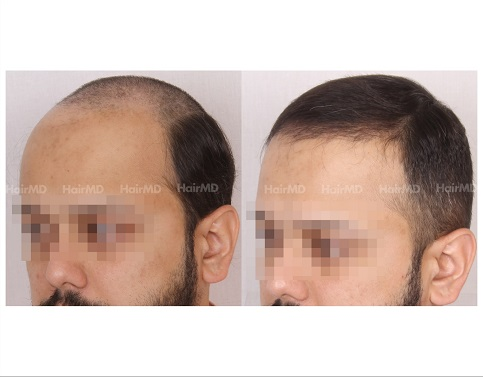 3Hair-Transplant-male-before-after-4000-hair-grafts-31