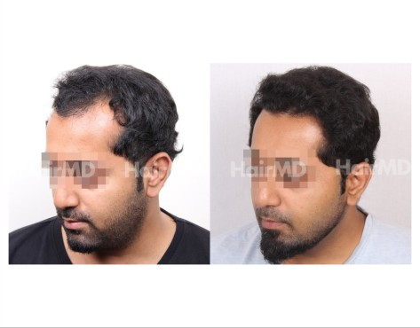 40Hair-Transplant-male-before-after-3000-hair-grafts-23