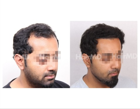 41Hair-Transplant-male-before-after-3000-hair-grafts-24
