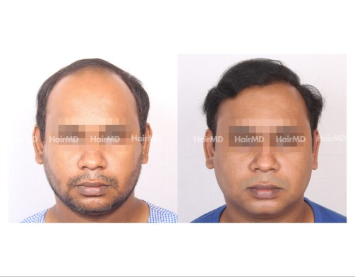 42Hair-Transplant-male-before-after-6000-hair-grafts-39