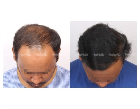 43Hair-Transplant-male-before-after-6000-hair-grafts-40