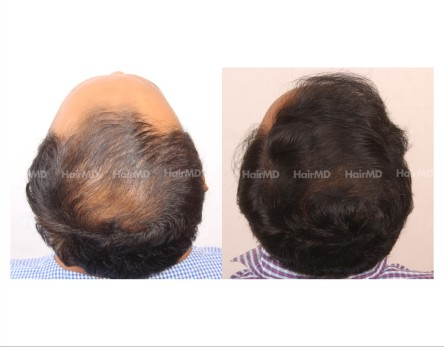 44Hair-Transplant-male-before-after-6000-hair-grafts-43