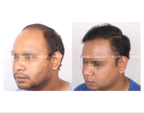45Hair-Transplant-male-before-after-6000-hair-grafts-41