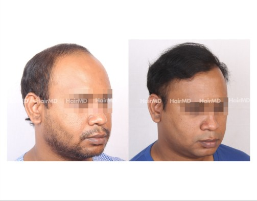 46Hair-Transplant-male-before-after-6000-hair-grafts-42