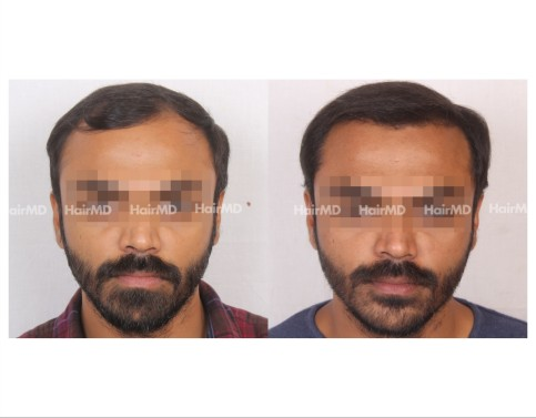 47Hair-Transplant-male-before-after-5000-hair-grafts-17