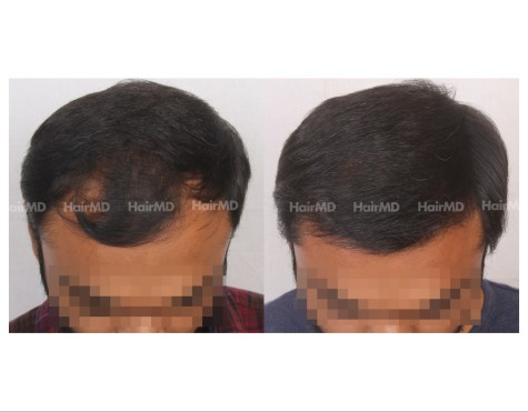 48Hair-Transplant-male-before-after-5000-hair-grafts-18
