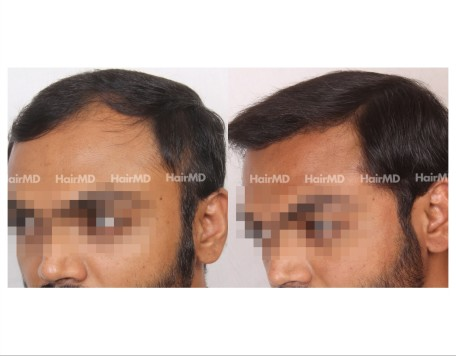 49Hair-Transplant-male-before-after-5000-hair-grafts-19