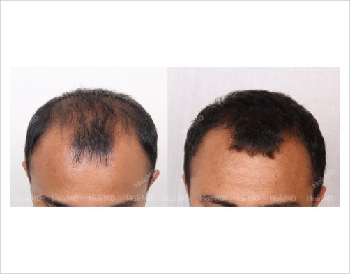 4Hair-Loss-male-before-and-after-result-11