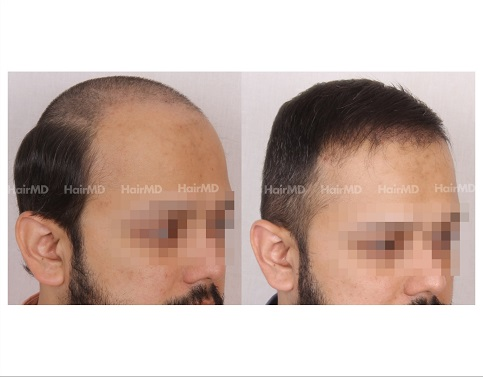 4Hair-Transplant-male-before-after-4000-hair-grafts-30