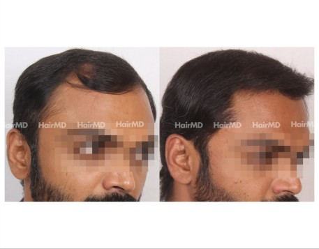 50Hair-Transplant-male-before-after-5000-hair-grafts-20