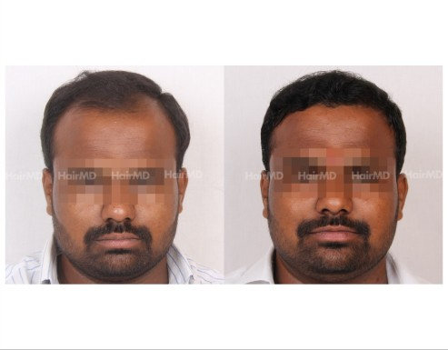 51Hair-Transplant-male-before-after-4000-hair-grafts-17