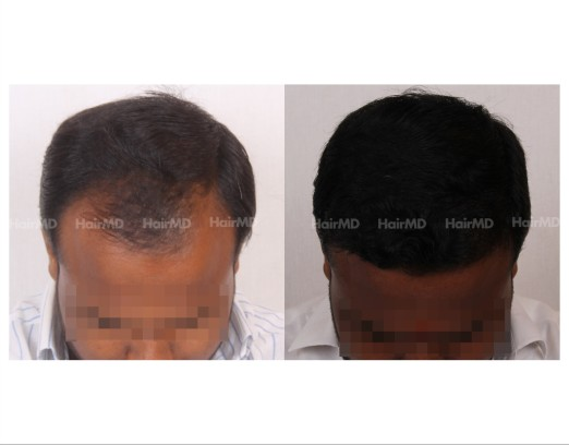 52Hair-Transplant-male-before-after-4000-hair-grafts-18