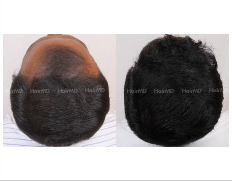 53Hair-Transplant-male-before-after-4000-hair-grafts-19
