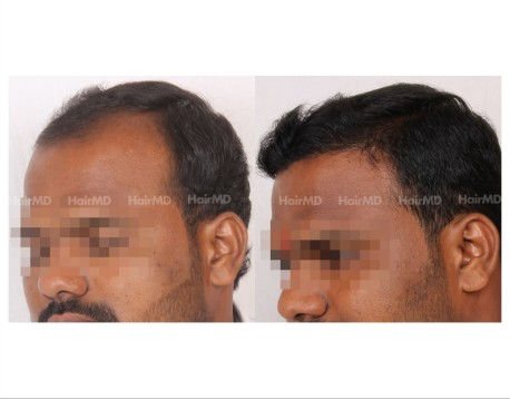 54Hair-Transplant-male-before-after-4000-hair-grafts-20