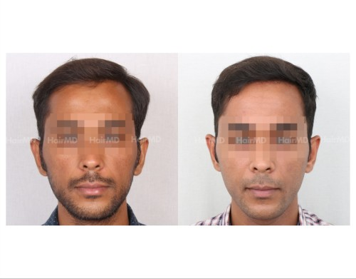 56Hair-Transplant-male-before-after-3000-hair-grafts-16