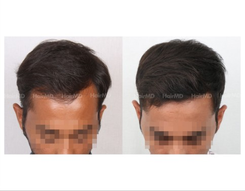 57Hair-Transplant-male-before-after-3000-hair-grafts-17