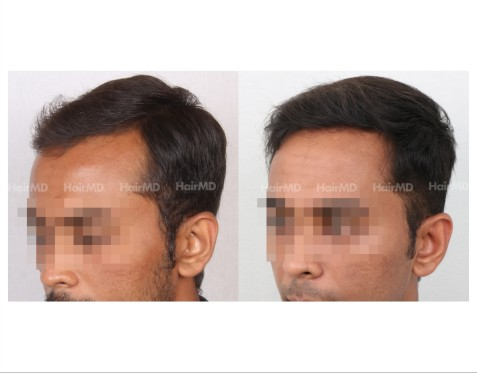 58Hair-Transplant-male-before-after-3000-hair-grafts-19