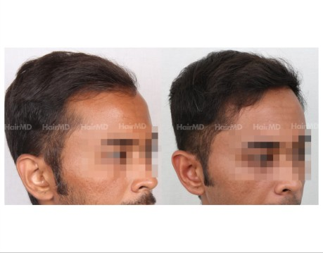 59Hair-Transplant-male-before-after-3000-hair-grafts-18
