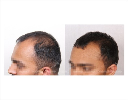5Hair-Loss-male-before-and-after-result-10